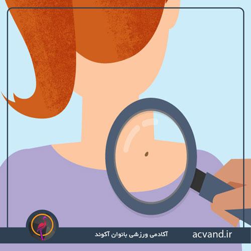 نشانه های سرطان پوست