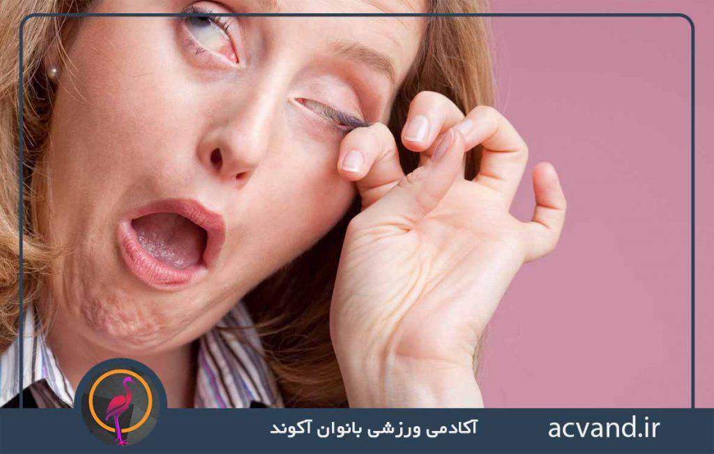 آسیب چشم