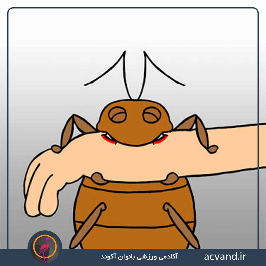 گزش حشرات