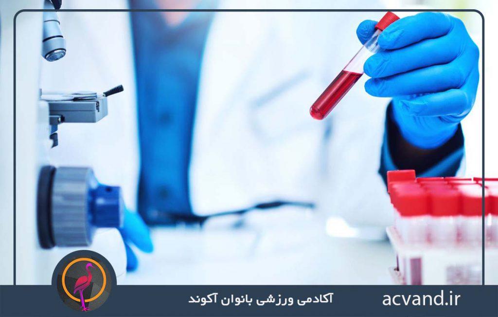 آزمایش پلاکت خون