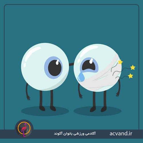 گرفتگی چشم