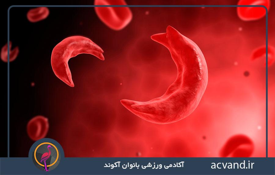 بیماری سلول داسی شکل